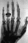 Albert von Köllikers hand1896